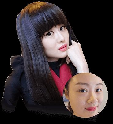 """Lean Yee Ling- Cô gái trẻ từ """"Đảo quốc sư tử"""" xa xôi đến Việt Nam để nâng mũi"""