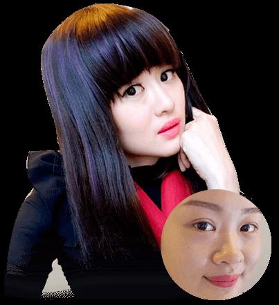 """Lean Yee Lynh- Cô gái trẻ từ """"Đảo quốc sư tử"""" xa xôi đến Việt Nam để nâng mũi"""
