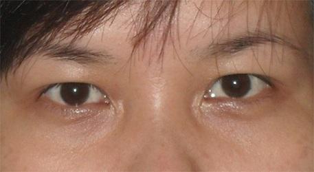 5 nguyên nhân gây sụp mí mắt và cách điều trị hiệu quả - Ảnh 3