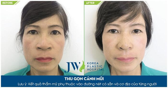 5 lưu ý quan trọng khi phẫu thuật cắt cánh mũi -