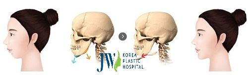 Phẫu thuật trượt cằm - Cằm đẹp tự nhiên không còn khuyết điểm - Ảnh 2