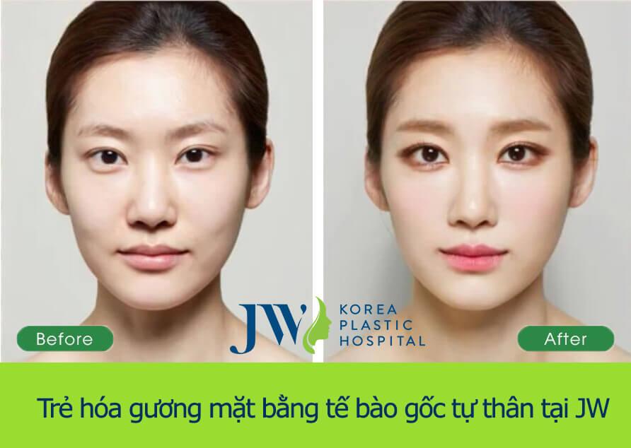JW thành lập Chuyên khoa cấy mỡ tự thân đầu tiên tại Việt Nam - Ảnh 8