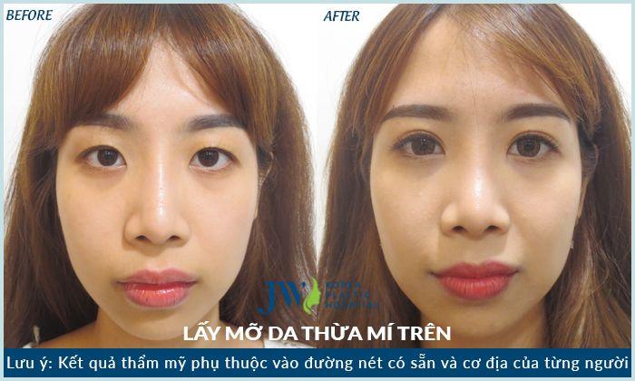 hình ảnh khách hàng sau khi cắt mắt hai mí