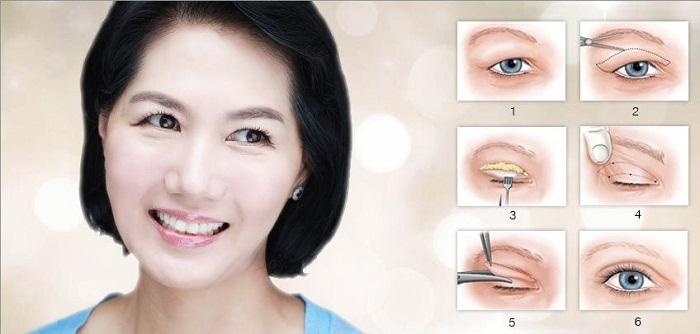 Cắt mắt hai mí Hàn Quốc - 4 điều cần lưu ý - Ảnh 4