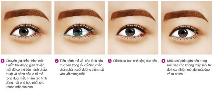 Thẩm mỹ mắt ở đâu đẹp - 3 Loại hình thẩm mỹ mắt nhiều người ưa chuộng - Ảnh 18