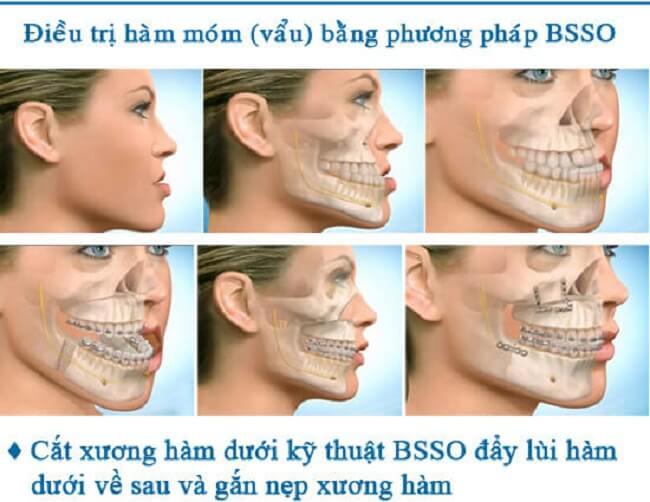 Phẫu thuật hàm móm BSSO_1