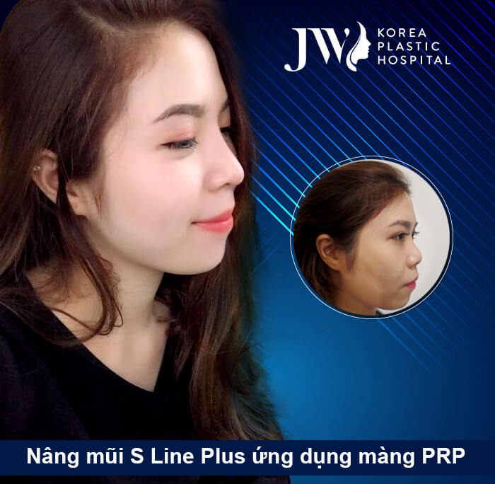 Nâng mũi Hàn Quốc đẹp tự nhiên - S Line Plus 3 lợi thế không thể bỏ qua - Ảnh 13