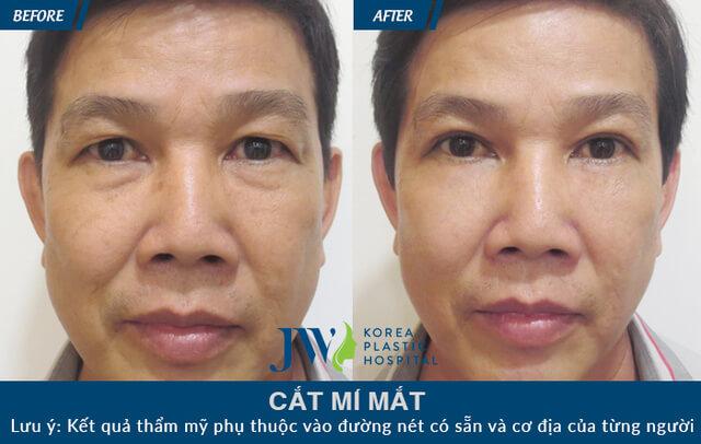 Lấy mỡ mí mắt dưới – 30 phút giữ mãi thanh xuân đôi mắt-hình 7