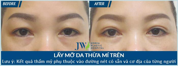 Lấy mỡ mí mắt trên - Bí quyết trẻ hóa đôi mắt tức thì - Ảnh 9