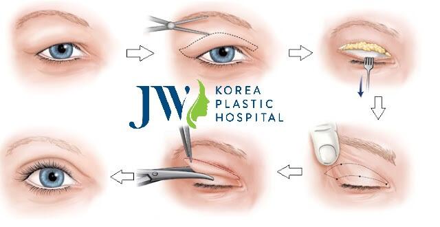 Lấy mỡ bọng mắt có đau không - 3 điều cẩn trọng tránh biến chứng - Ảnh 1