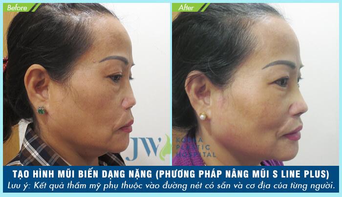 Bác sĩ sửa mũi đẹp nhất Sài Gòn - TS.BS Nguyễn Phan Tú Dung- Ảnh 3
