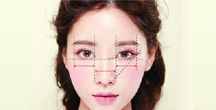 Phẫu thuật mắt to_1