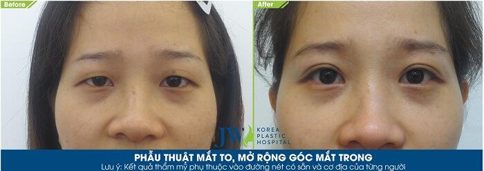 Phẫu thuật mắt to_9