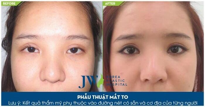 Phẫu thuật mắt to_7
