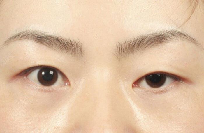 Thẩm mỹ mắt to mắt nhỏ _1