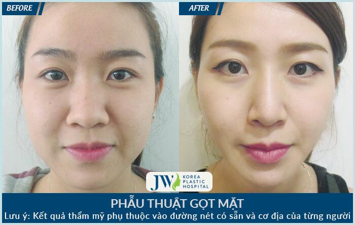 Phẫu thuật gọt mặt có đau không – Bí quyết giảm sưng đau hiệu quả-hình 8