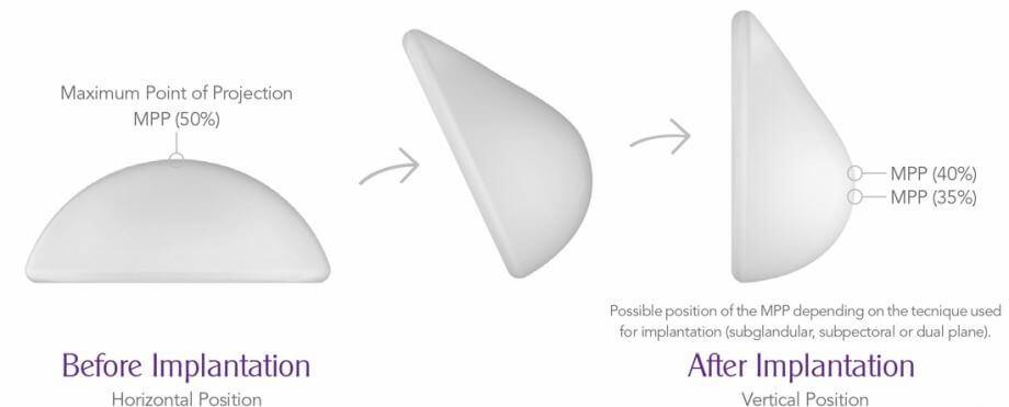 Chọn size túi ngực - 3 điều quan trọng không thể bỏ qua - Ảnh 7