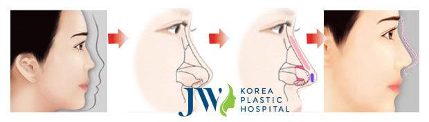 Hướng dẫn cách chăm sóc sau khi nâng mũi-hình 2