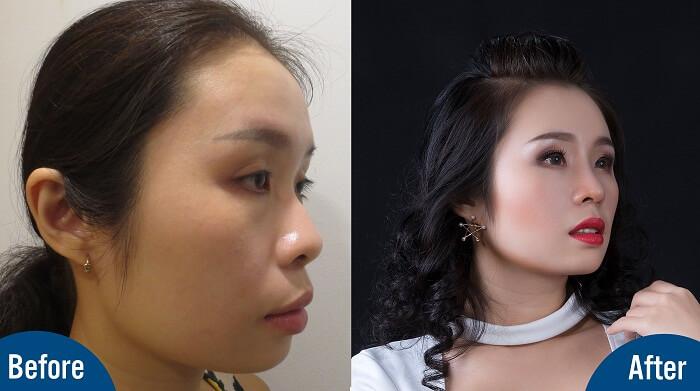 Phẫu thuật thẩm mỹ là gì - Hiểu đúng về giá trị của cái đẹp - Ảnh 4