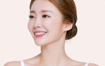 Phẫu thuật nâng mũi bằng sụn tự thân có tốt không?
