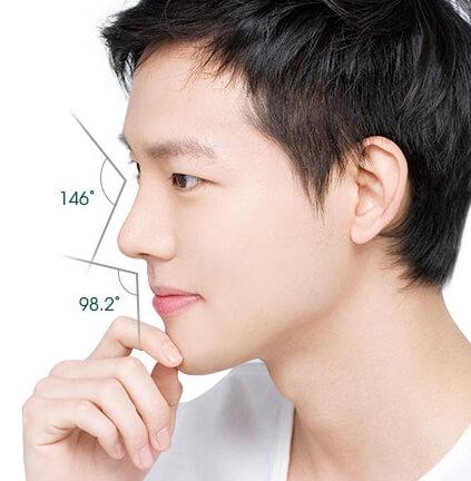Nâng mũi Hàn Quốc có tốt không? 5 lý do bạn nên nâng mũi Hàn Quốc - Ảnh 5