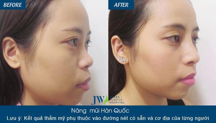 4 Điều không thể bỏ lỡ khi nâng mũi bằng sụn nhân tạo - Ảnh 3