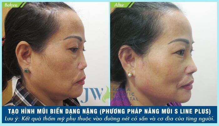 Giá nâng mũi S Line bệnh viện JW - Ảnh 9
