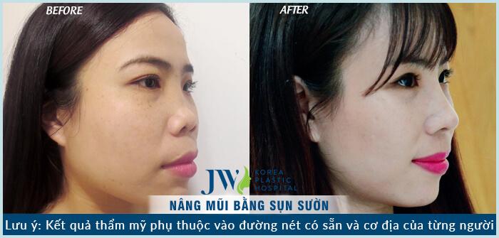 Phẫu thuật nâng mũi bằng sụn tự thân có tốt không-hình 7