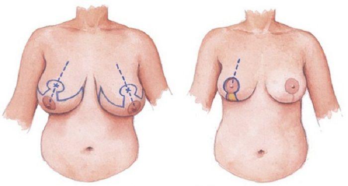 Nâng ngực chảy xệ sau sinh - 4 điều không nên bỏ lỡ - Ảnh 3