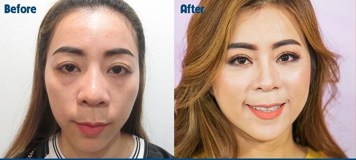 So sánh 2 không nghệ thẩm mỹ mắt Hàn Quốc gây sốt ở Việt Nam - Ảnh 3