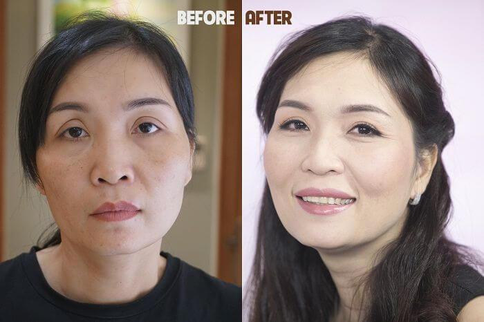 So sánh 2 không nghệ thẩm mỹ mắt Hàn Quốc gây sốt ở Việt Nam - Ảnh 2