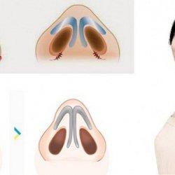 Cắt cánh mũi có hại không – Giải đáp từ A đến Z về thẩm mỹ mũi