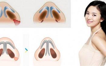 Cắt cánh mũi có hại không - Giải đáp từ A đến Z về thẩm mỹ mũi