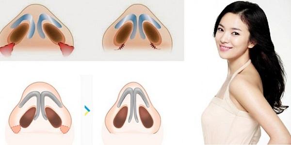 Cắt cánh mũi có hại không - Giải đáp từ A đến Z về thẩm mỹ mũi - Ảnh 1
