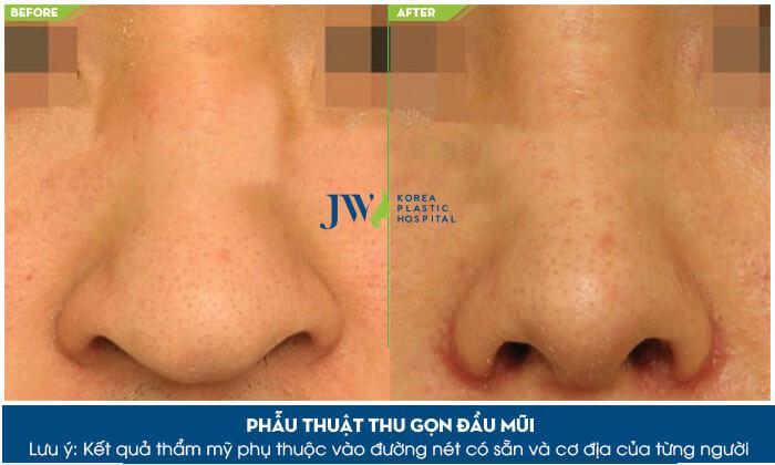 Cắt cánh mũi có hại không - Giải đáp từ A đến Z về thẩm mỹ mũi - Ảnh 8