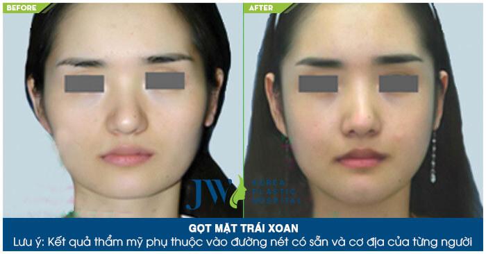 Phẫu thuật gọt mặt có đau không – Bí quyết giảm sưng đau hiệu quả-hình 9