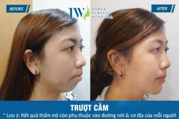 Phẫu thuật trượt cằm V line tại Bệnh viện JW có được kết quả an toàn và hiệu quả lâu dài.