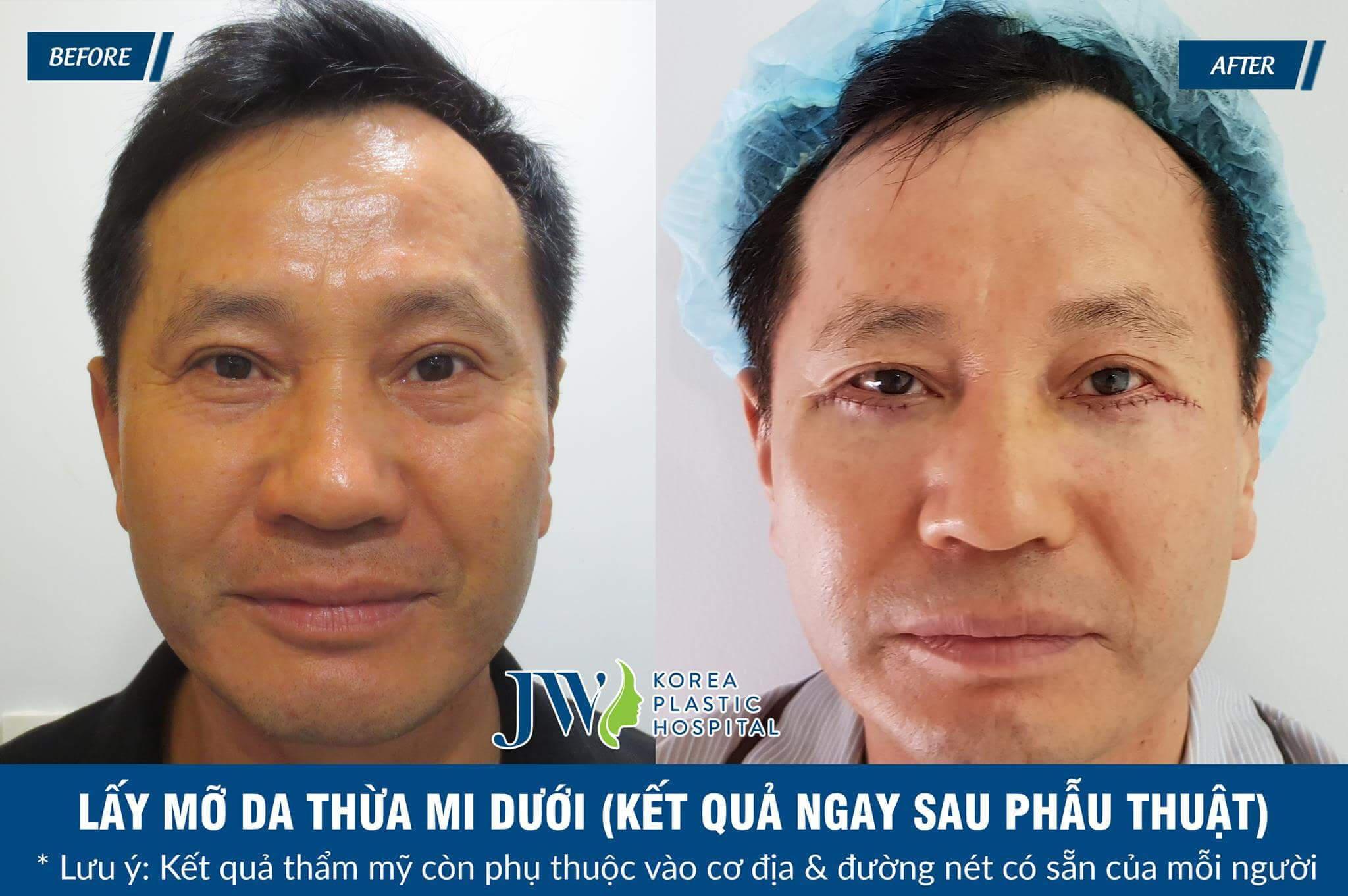 Lấy mỡ bọng mắt có đau không - 3 điều cẩn trọng tránh biến chứng - Ảnh 7