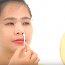 Hướng dẫn chăm sóc mũi đúng cách sau nâng