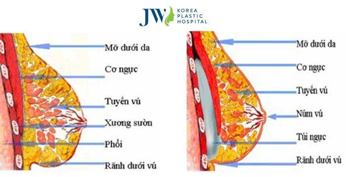 Nâng ngực chảy xệ sau sinh - 4 điều không nên bỏ lỡ - Ảnh 5