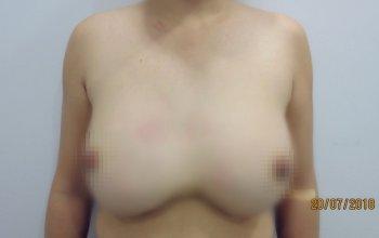 Hỏng cả hai khoang ngực vì bơm cả lít Silicon