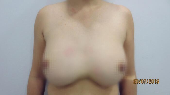 Hỏng cả hai khoan ngực vì bơm cả lít Silicon