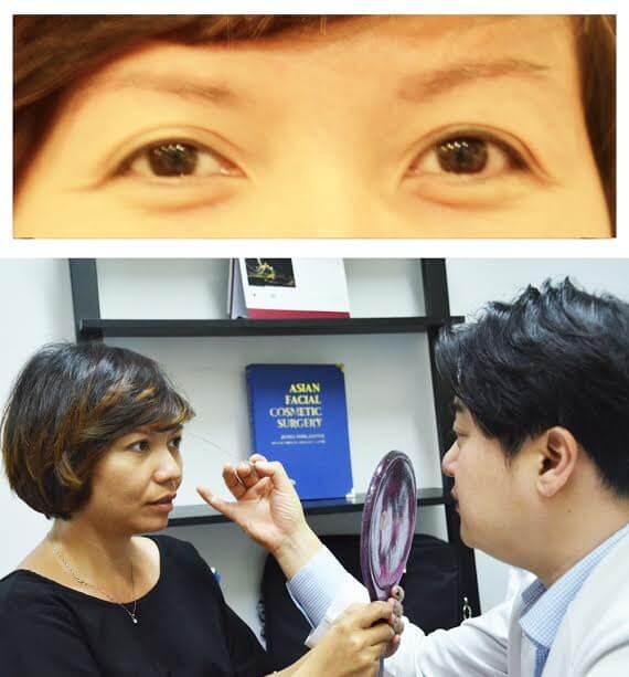 Tổng hợp những clip phẫu thuật cắt mí mắt-hình 6