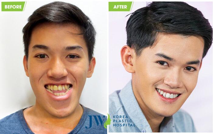 Bản thân Khánh Du cũng không thể tin được sau khi phẫu thuật chữa móm sắc diện của mình lại thay đổi đến vậy. Chàng trai Khánh Du được Bệnh viện JW hỗ trợ kinh phí phẫu thuật, nhờ đó mà bản thân có thêm sự tự tin để phấn đấu trong cuộc sống