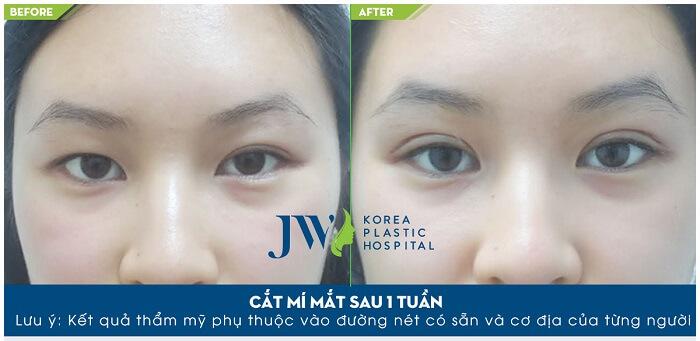 Chi phí cắt mắt 2 mí – Những vấn đề cần nắm khi thẩm mỹ-hình 7
