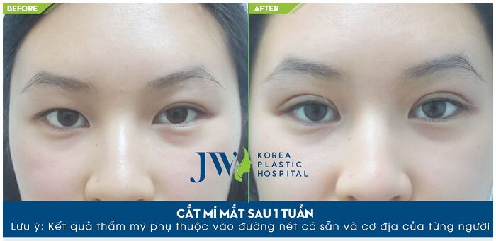 Thẩm mỹ cắt mí mắt ở đâu đẹp và an toàn-hình 7