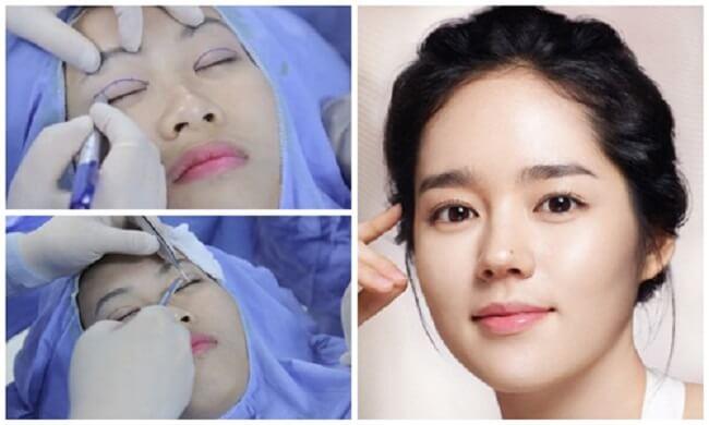 Tổng hợp những clip phẫu thuật cắt mí mắt-hình 3