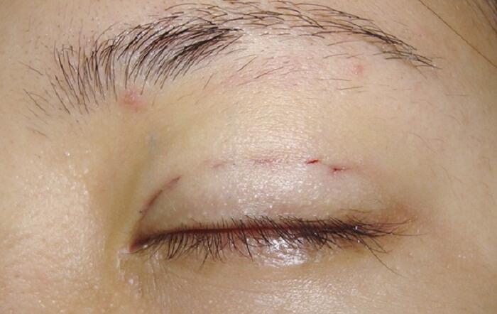 Cách chăm sóc sau khi cắt mí mắt_2