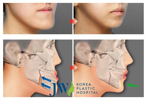Thẩm mỹ hàm móm hiệu quả 99%, cải thiện toàn diện gương mặt - Ảnh 2