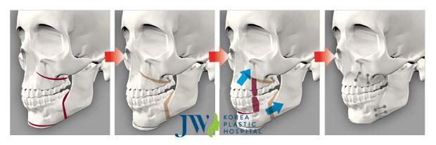 Cắt hàm hô – Hơn 1.000 ca phẫu thuật thành công tại Bệnh viện JW-hình 2
